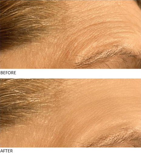 Micro Crystal Patches - Contours Rx® - Before & After apply forehead