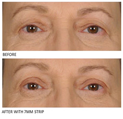 Lids By Design eyelid tape - Contours Rx® - Close up view of Before & After apply 7mm correcting strip for man