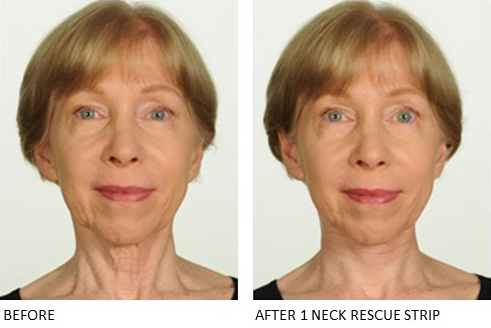 Neck Rescue Strip - Contours Rx® - Before & After apply front view