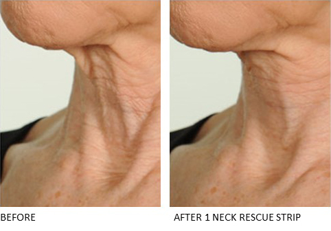 Neck Rescue Strip - Contours Rx® - Before & After apply side view for old lady