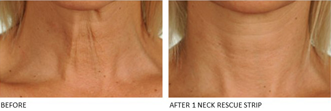Neck Rescue Strip - Contours Rx® - Close up view of Before & After