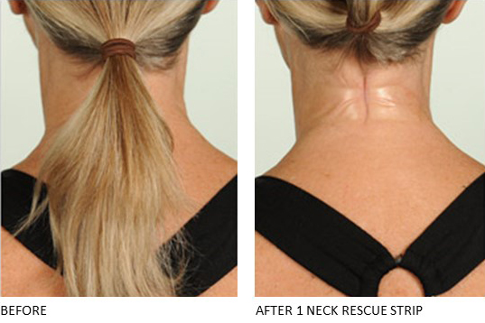 Neck Rescue Strip - Contours Rx® - Before & After apply back side