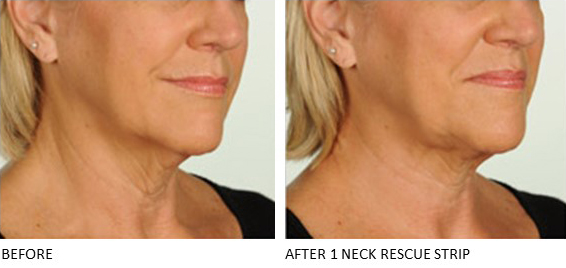 Neck Rescue Strip - Contours Rx® - Before & After apply neck area