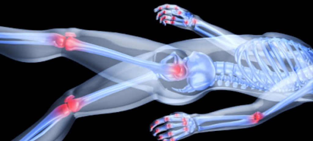 Inflammation: How and Why It Affects You