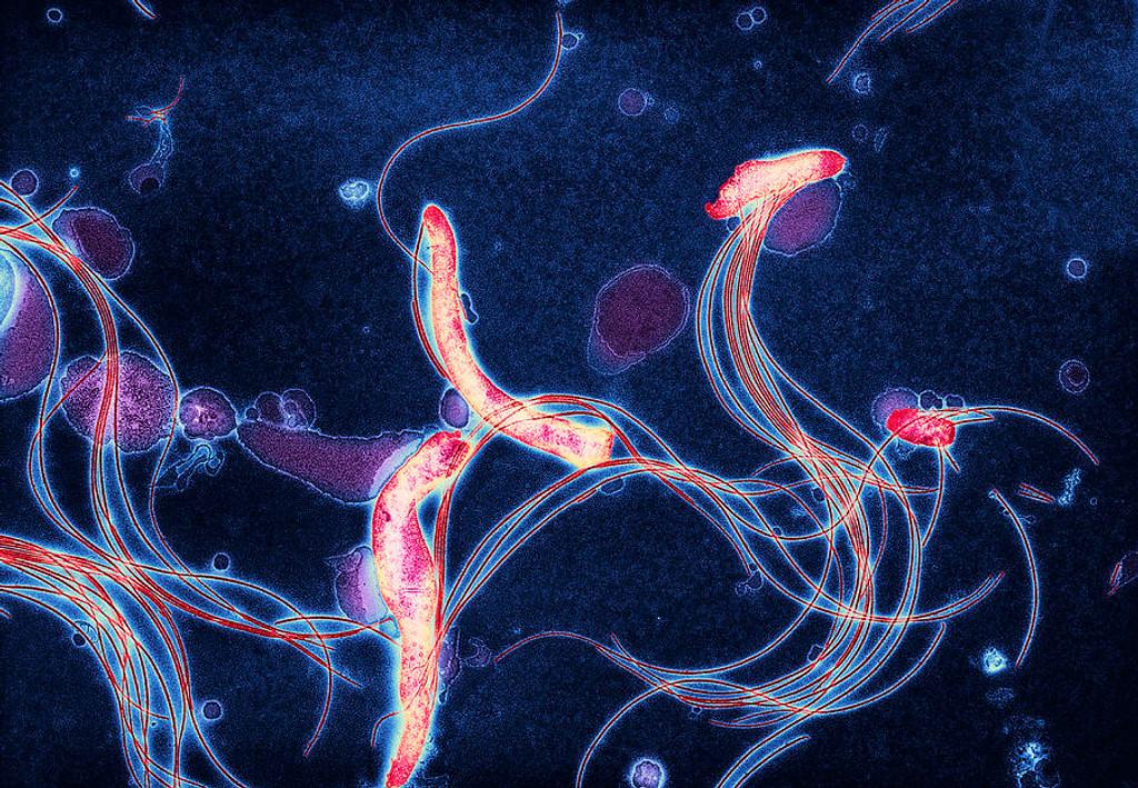 Patient Story: Lyme Disease