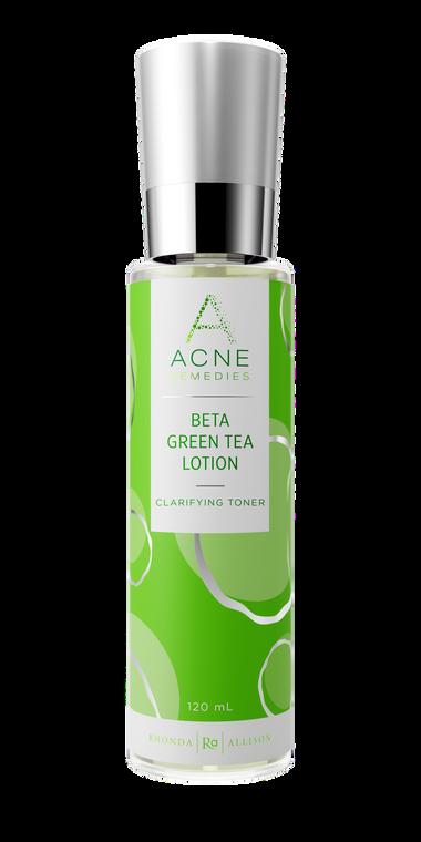 Beta Green Tea Lotion - Acne Remedies