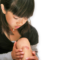 Homeopathy for Skin Wounds