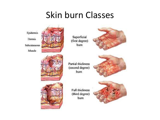 suffered a burn? homeopathy can help
