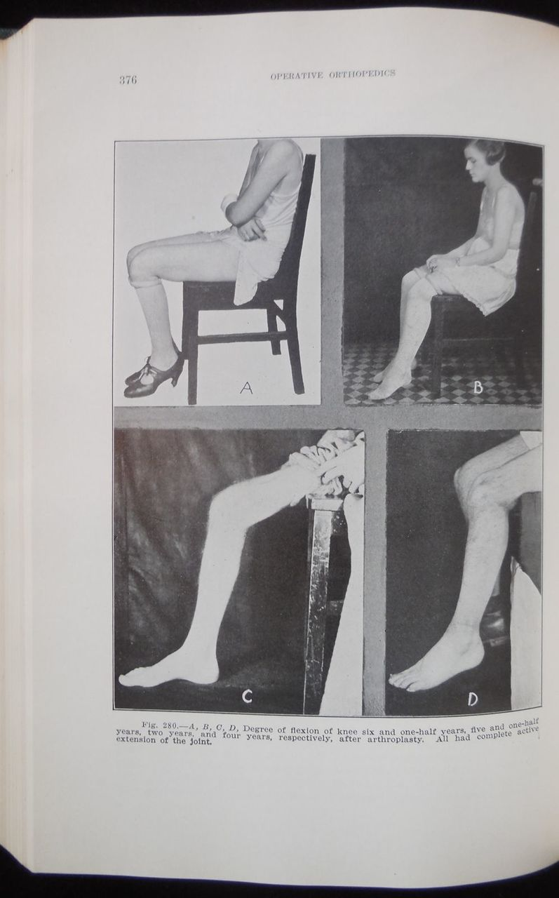 OPERATIVE ORTHOPEDICS, by Willis C. Campbell - 1939 [First Edition] Medical