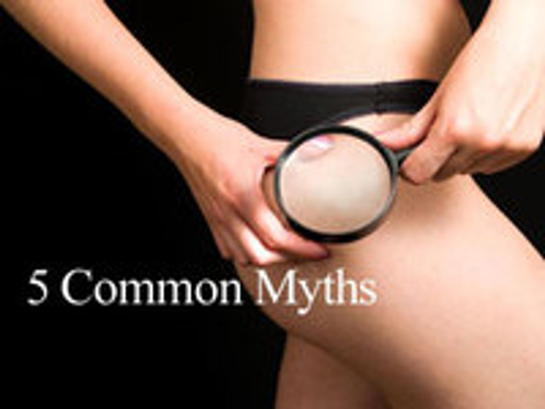 5 Myths About Cellulite!