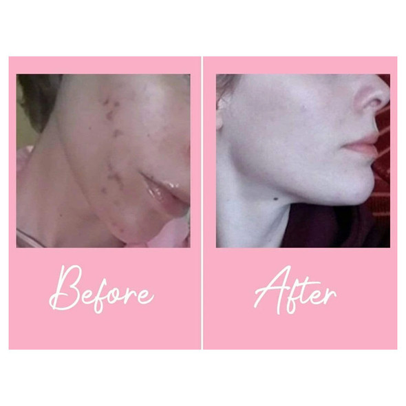 Skinician Purifying Day Moisturiser 50ml Before and After