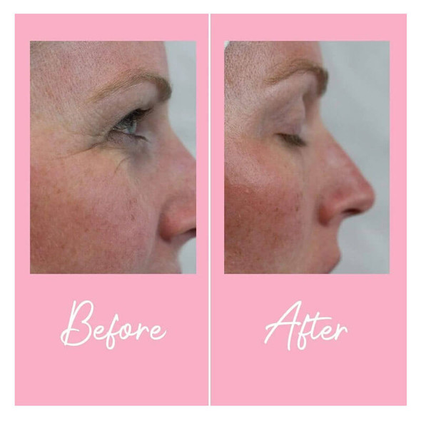 Skinician Advanced Eye Repair 15ml Before and After