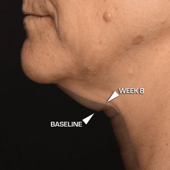 Dr. Brandt Needles No More Neck Sculpting Cream 50ml before/after