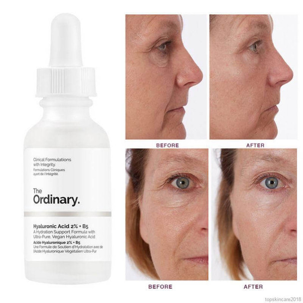 The Ordinary Hyaluronic Acid 2% + B5 - 30ml Before and After