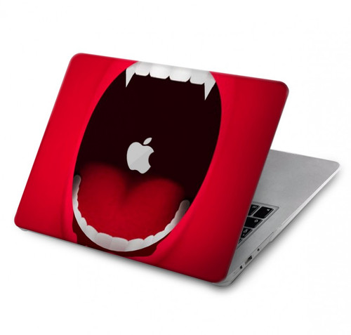 S2103 Vampire Mouth Hard Case For MacBook Pro 15″ - A1707, A1990