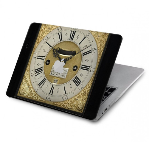 S3144 Antique Bracket Clock Hard Case For MacBook Pro 15″ - A1707, A1990