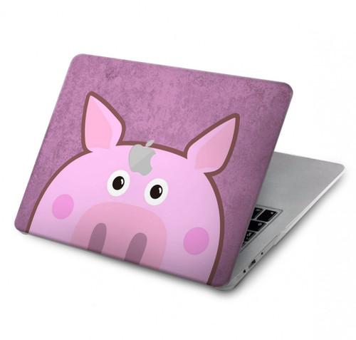 S3269 Pig Cartoon Hard Case For MacBook Pro 15″ - A1707, A1990