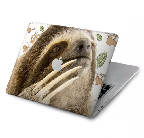 S3559 Sloth Pattern Hard Case For MacBook Pro 15″ - A1707, A1990
