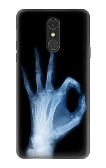 S3239 X-Ray Hand Sign OK Case For LG Q7
