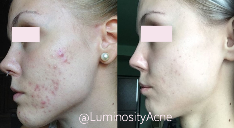 Raleigh NC Acne Treatment