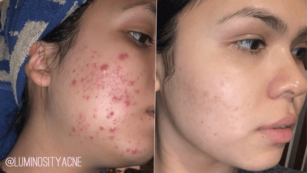 Luminosity Acne Skincare