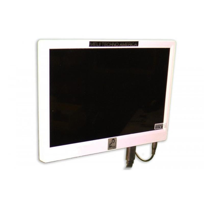 Meiji Techno HD1000-LITE-M Color High Definition CMOS HDMI & USB 2.0 Camera with 11.8in HDMI Monitor - 1080P