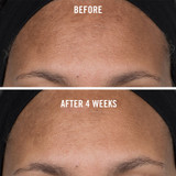 Facial Radiance Niacinamide Dark Spot Serum