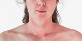 What is Eczema and How to Treat it