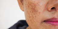 How to Get Rid of Dark Spots and Hyperpigmentation Treatment