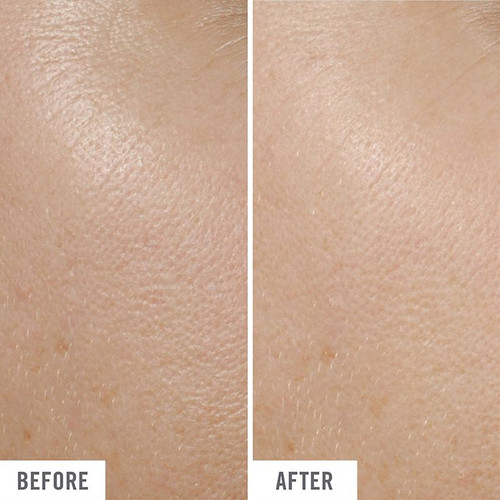 5 in 1 Eye Cream Before and After Use