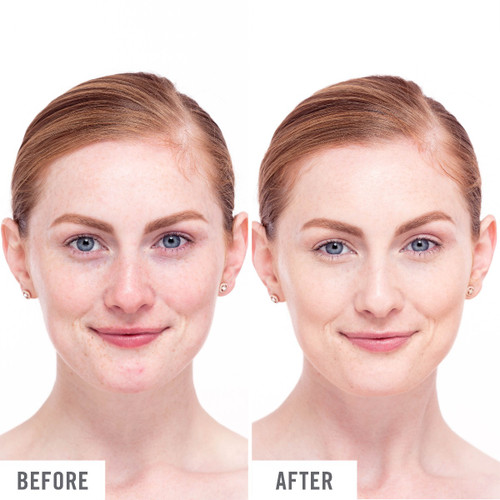 Before and after Use of Ultra Repair Tinted Moisturizer Spf 30