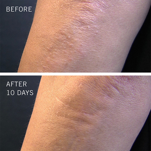 10 Days Before and after Use of Kp Bump Eraser Body Scrub 10% Aha