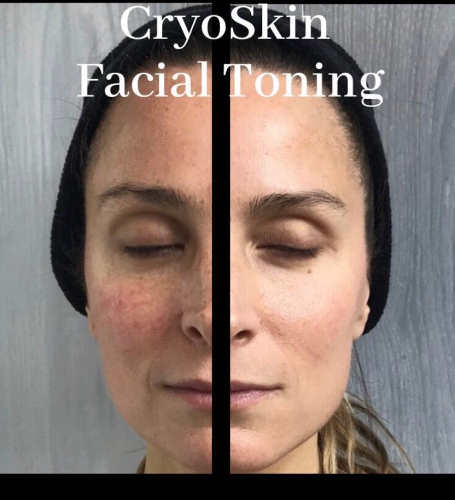 cryoskin-facial-toning.jpg