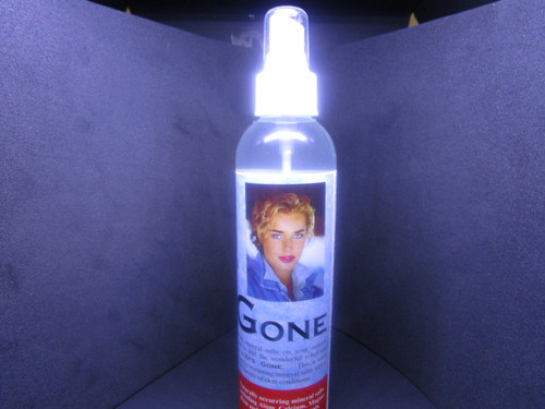 """Zits Gone"" -   8 oz spritz"