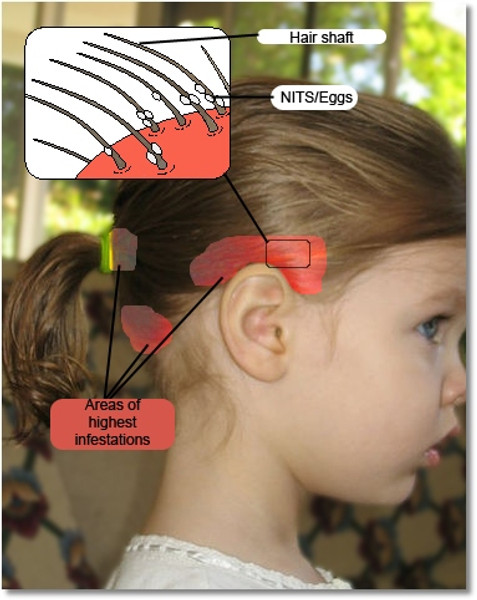 Where are head lice and nits found on the head?