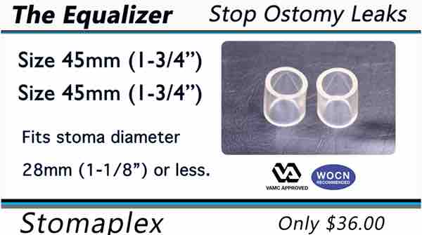 The Equalizer by Stomaplex helps to prevent ostomy leaks by improving the bond of the ostomy skin barrier to the skin.