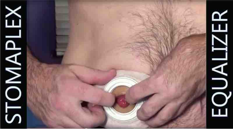 Prevent ostomy leaks.