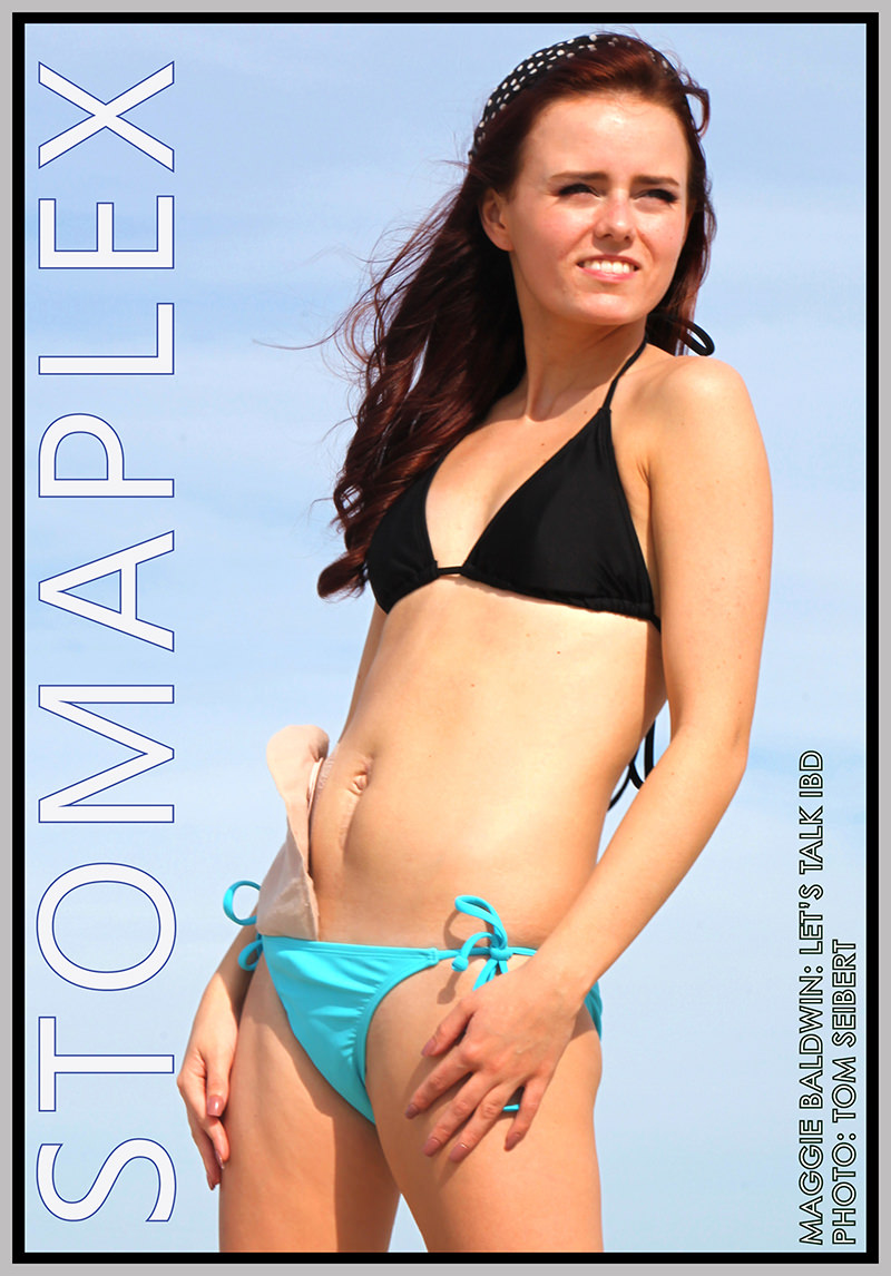 Ostomy swimsuit model swims with an ostomy.