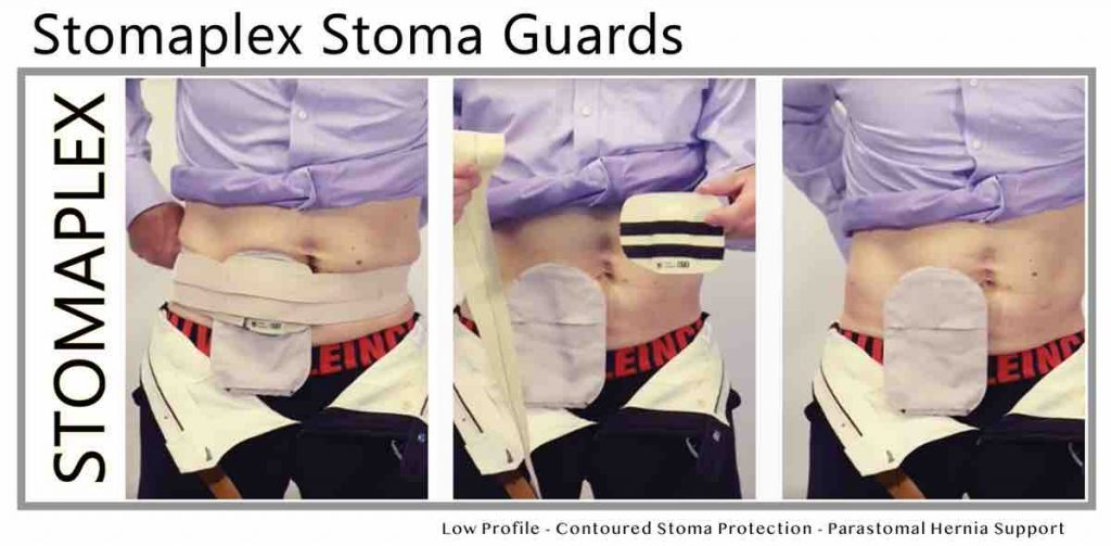 Stomaplex Guard and Ostomy Belt, women, men, pants, jeans,colostomy, ileostomy, urostomy. comfort belt ostomy