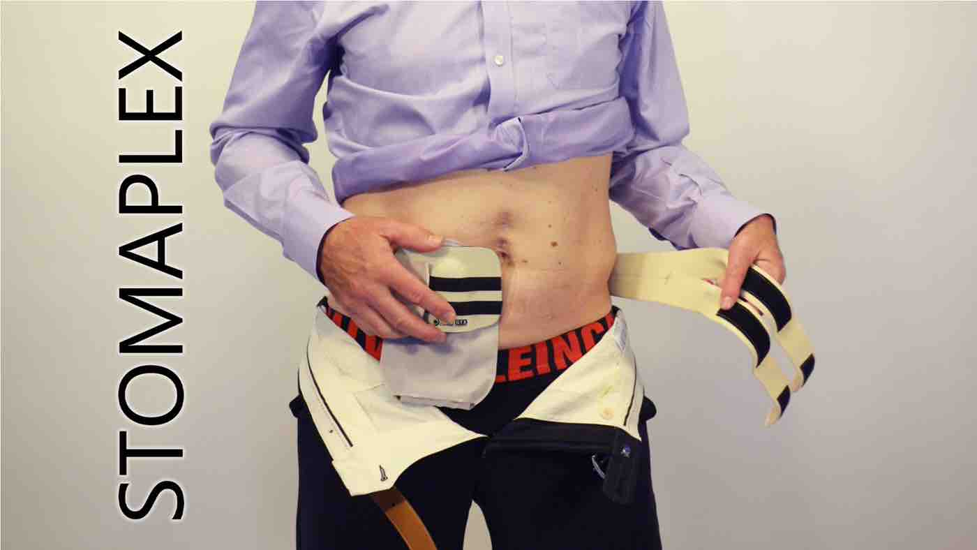 stoma guard is placed over the ostomy bag, stomaplex