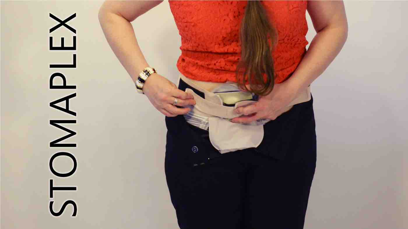 stoma guard is secured on a womens hips with an adjustable ostomy belt by stomaplex