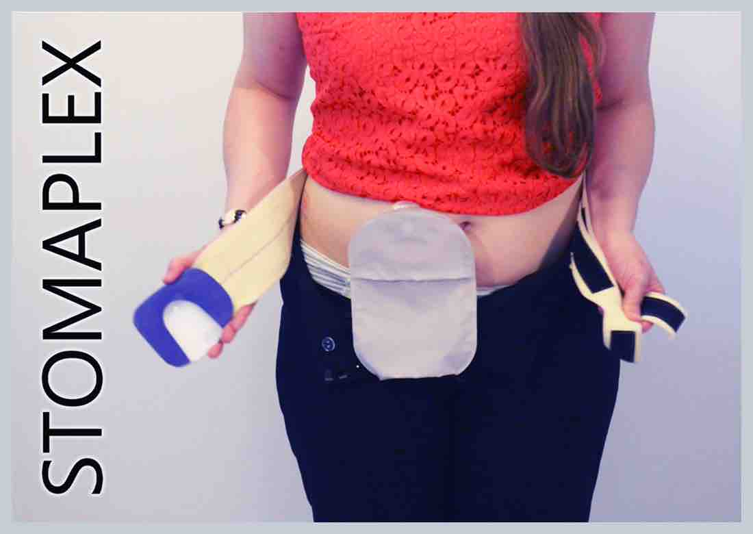 Her ostomy underwear is beneath her ileostomy bags, made by Stomaplex stoma guard, women opens pants to show panties under ostomy bag, ileostomy bag from coloplast on a women