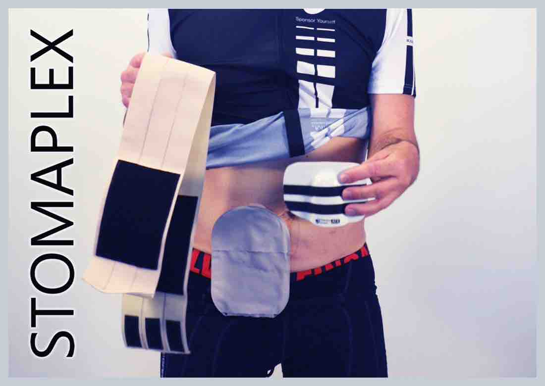 Man with parastomal hernia belt and sports clothes, made by Stomaplex stoma guard, man lifts up shirt pulls down shorts shows ileostomy bag with ostomy belt for ostomy protection