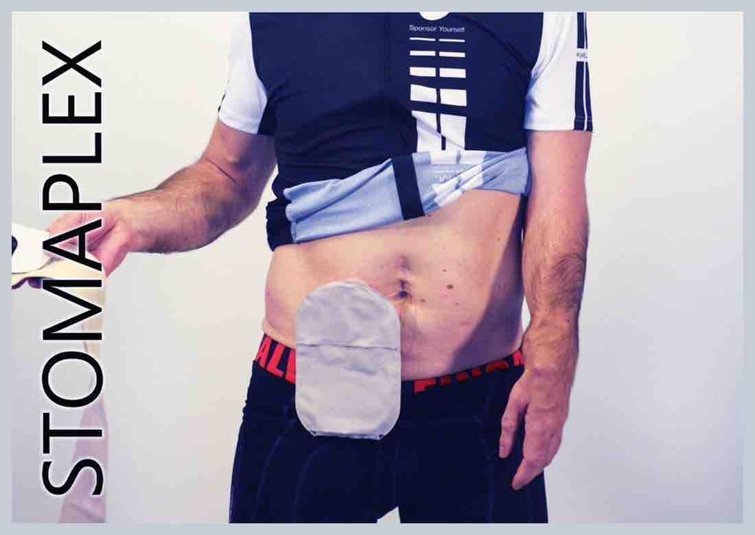 Tight waistbands on bike shorts interfere with the output of an ileostomy, made by Stomaplex stoma guard, he lowers his pants to show ostomy bag and underwear, men need ostomy protection to be healthy