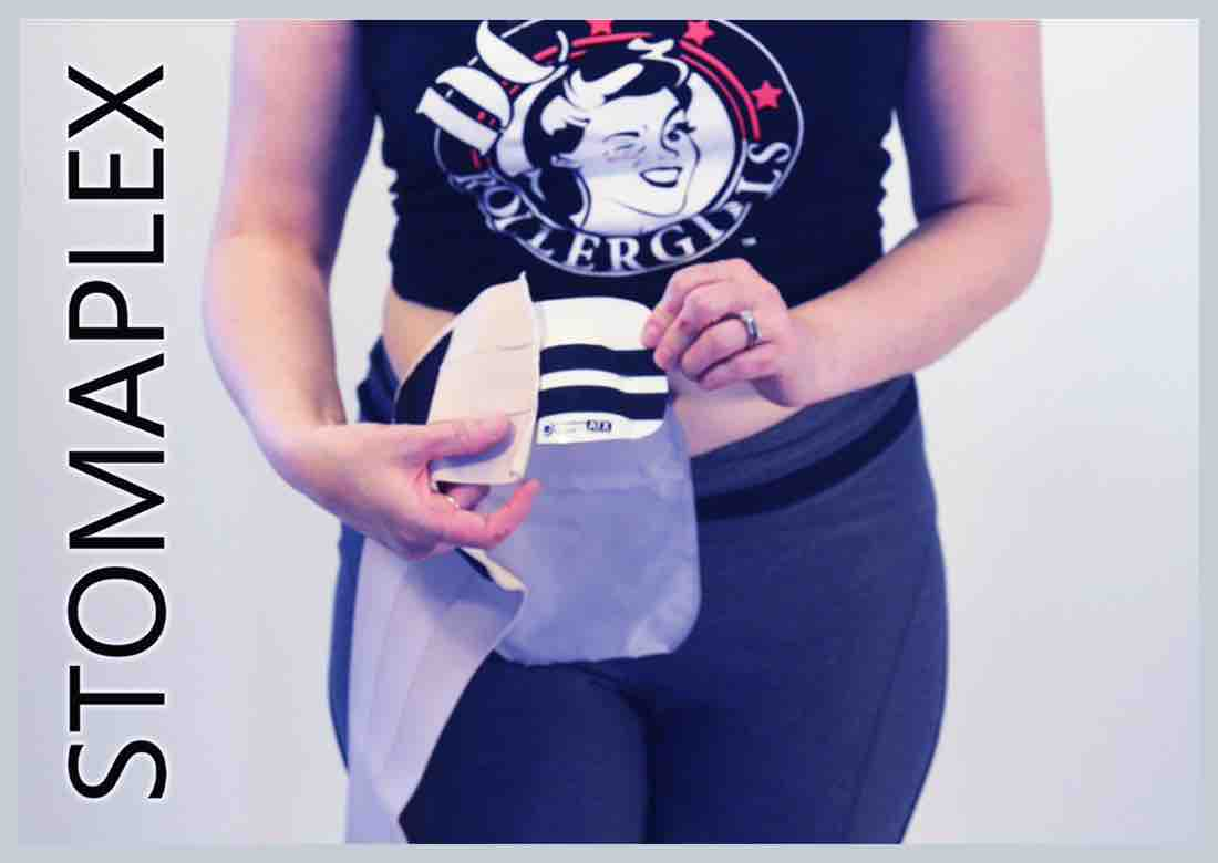 Ostomy bag holder on women, she wears an ostomy belt with support for women by Stomaplex stoma guard, she pulls out her ostomy bag to cover and protect her stoma