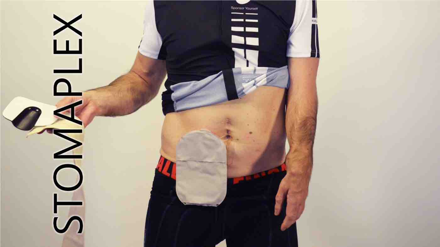 stomaparastomal hernia support belt stomaplex