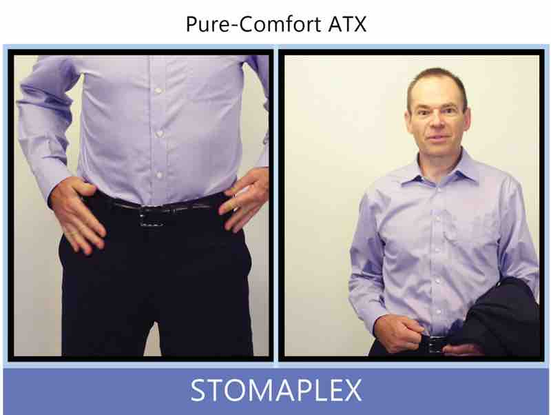 man gets dressed with a suit after putting on a stoma guard from stomaplex with an ostomy belt