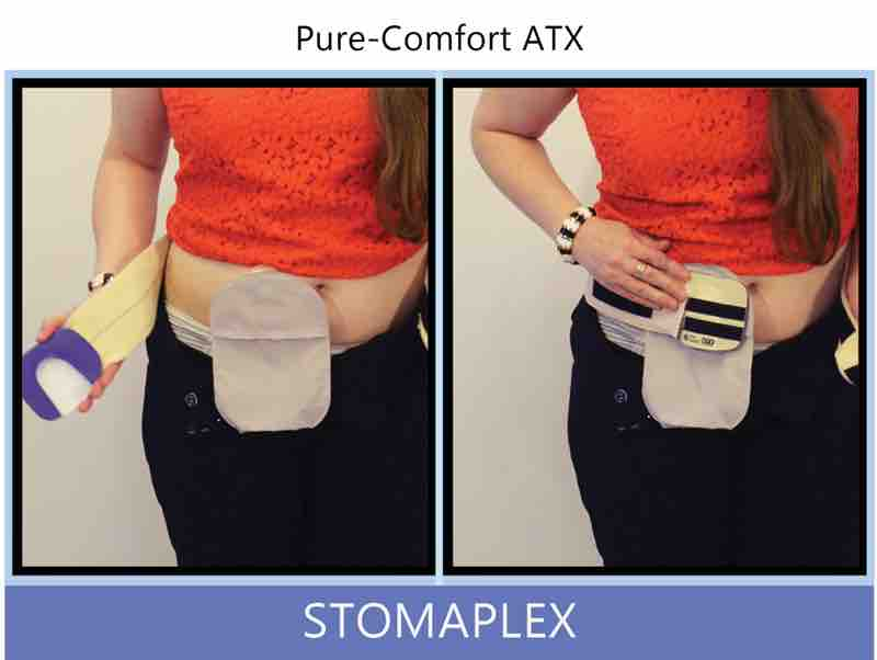 women lowers her pants to show ostomy bag and panties, ostomy bag from coloplast, stoma guard from stomaplex