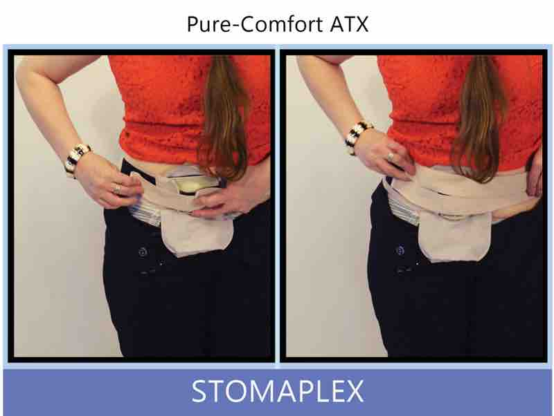 women adjust tension on ostomy belt for the belt fit with a stoma guard
