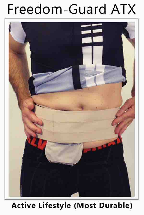The parastomal hernia support belt on a man in bike shorts with a stoma guard